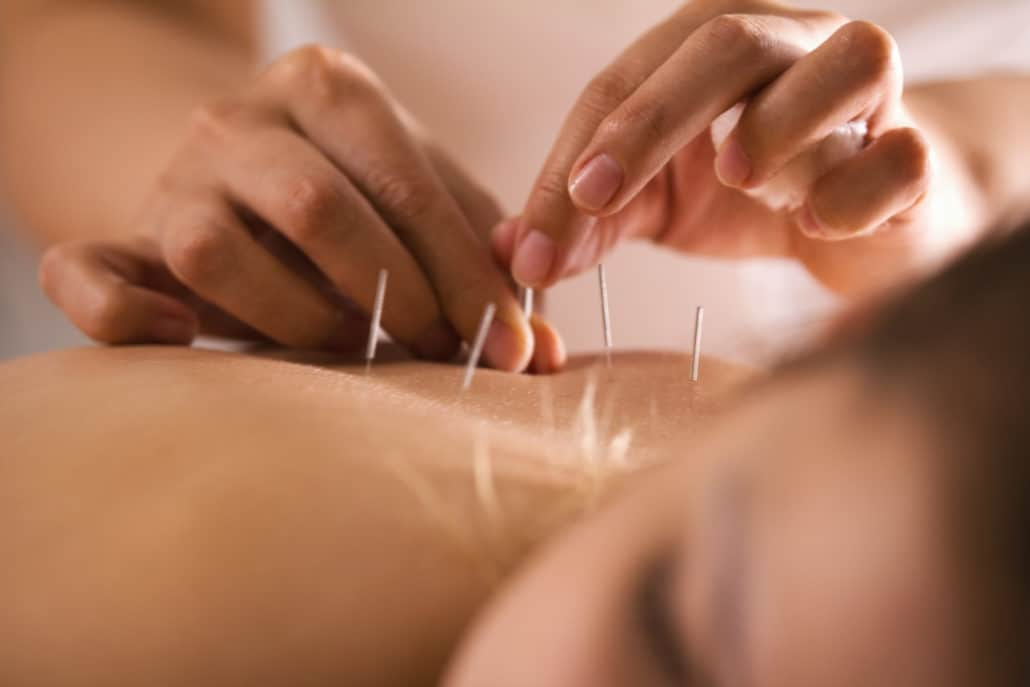 Does Medicare Cover Acupuncture